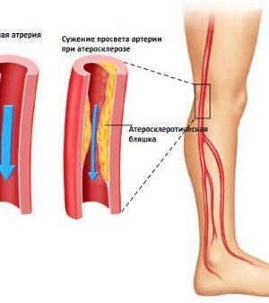 Сильные боли в ногах причины компания автотехнологии